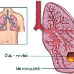 Áp xe phổi theo Đông Y