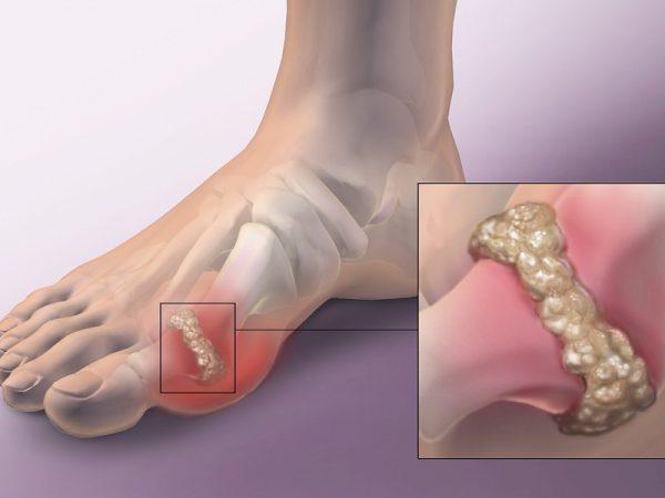 thong-phong-benh-gout
